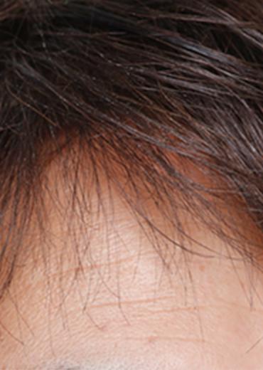 ウィッグ 男性前髪